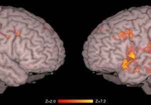 BDD Brain Scan