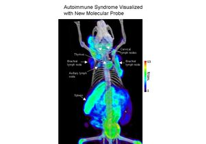 Autoimmune visualization with new PET probe