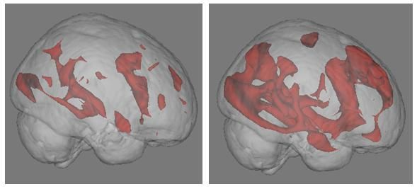 Brain activity from Internet search