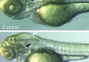 Eye to eye with a zebrafish