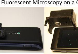 Microscopy in a matchbox