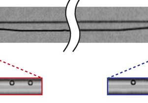Microfluidic filter