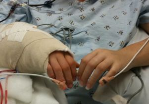 Hands, post-operation