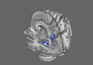 BDD brain