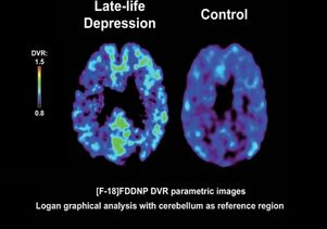 Image from UCLA FDDNP Depression Study