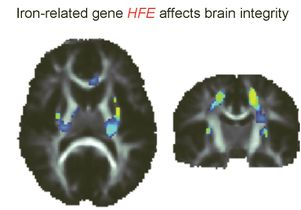 Iron-related gene HFE and the brain