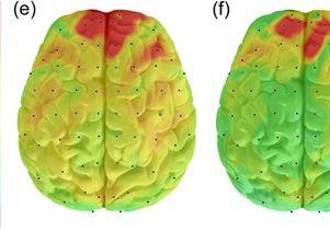 Brain hyperactivity
