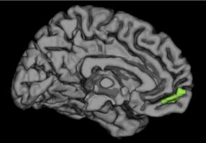 The brain, with the medial prefrontal cortex highlighted in green.