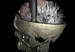 Phineas Gage's skull