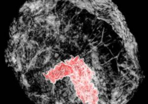 Breast tumor imaged in 3-D