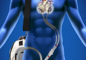 SynCardia Total Artificial Heart system
