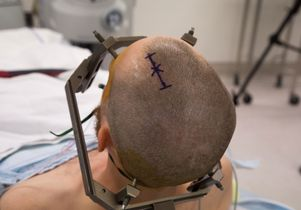 Deep brain stimulation - preparation