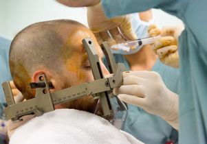 Deep brain stimulation preparation