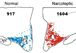 Histamine and narcolepsy