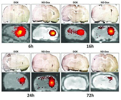 Decadron Dosage For Brain Tumor