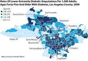 Diabetes amputations