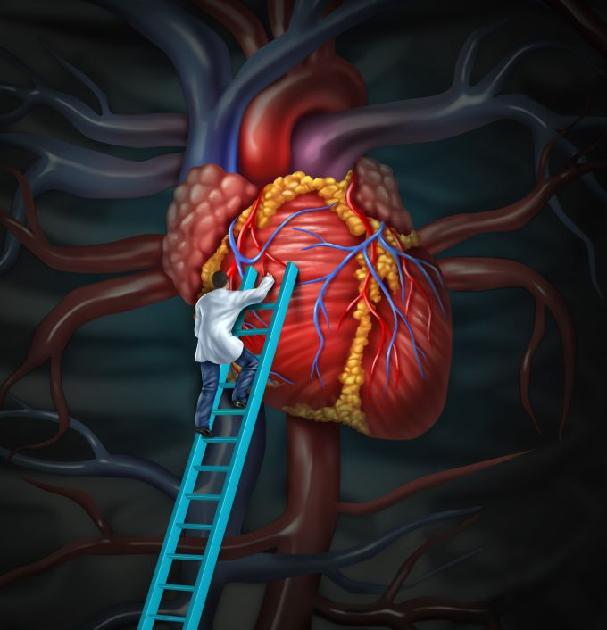 Heart and medical intervention