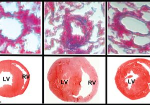 Lung and heart with microRNA-193