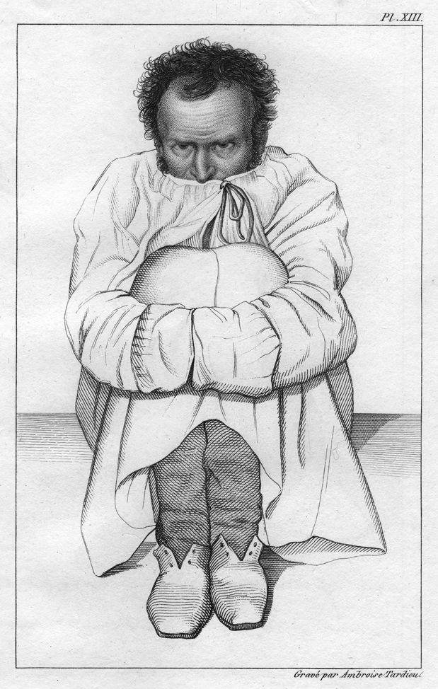 Man Who Mistook engraving
