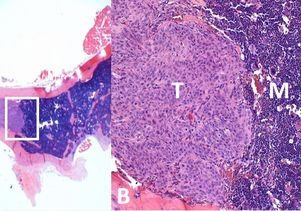 Prostate cancer metastasis in bone