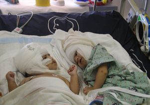 Photo showing the twins after surgery