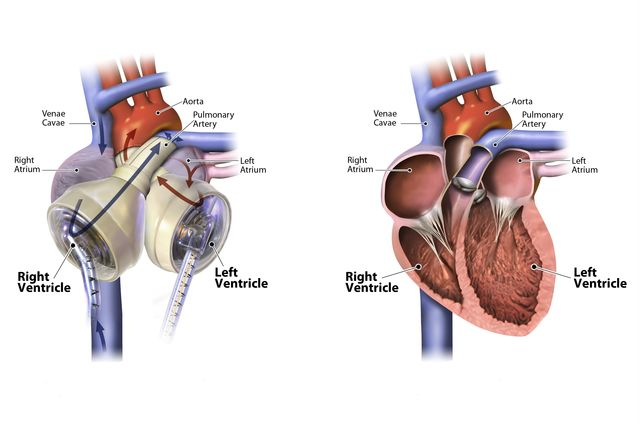 How is an artificial replacement heart implanted during surgery?