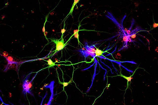 Neurons making GDF10