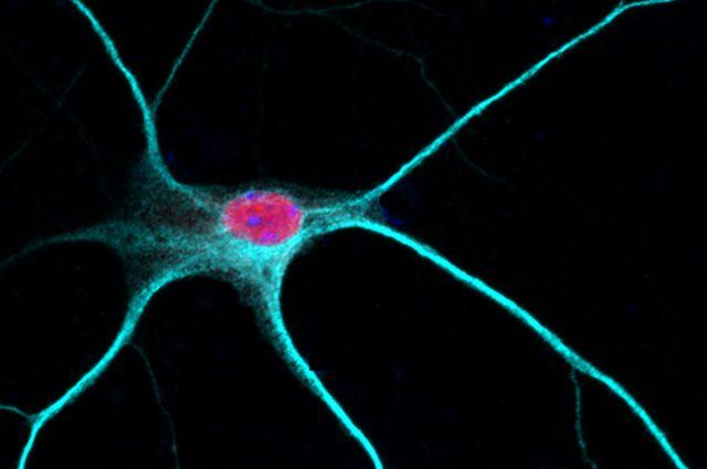 Rbfox1 in the nucleus