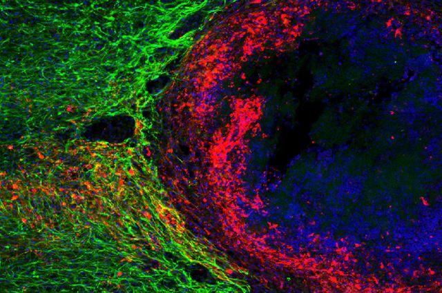 Nerve fibers regrowing