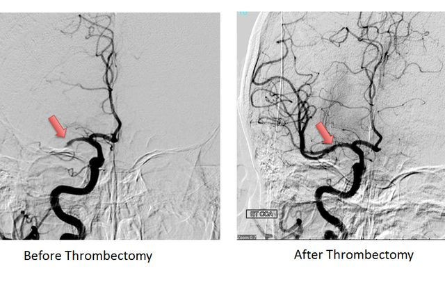 Thrombectomy