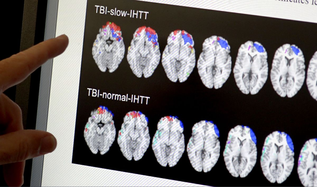 Traumatic brain injury study scans