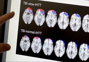 Traumatic brain injury study scans