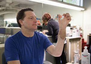 Jonathan Koch and his transplanted hand