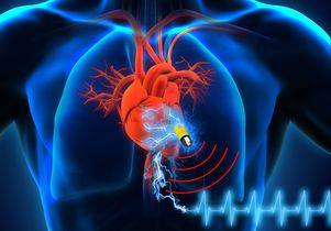 The supercapacitor could lead to pacemakers and other implantable medical devices that last a lifetime.