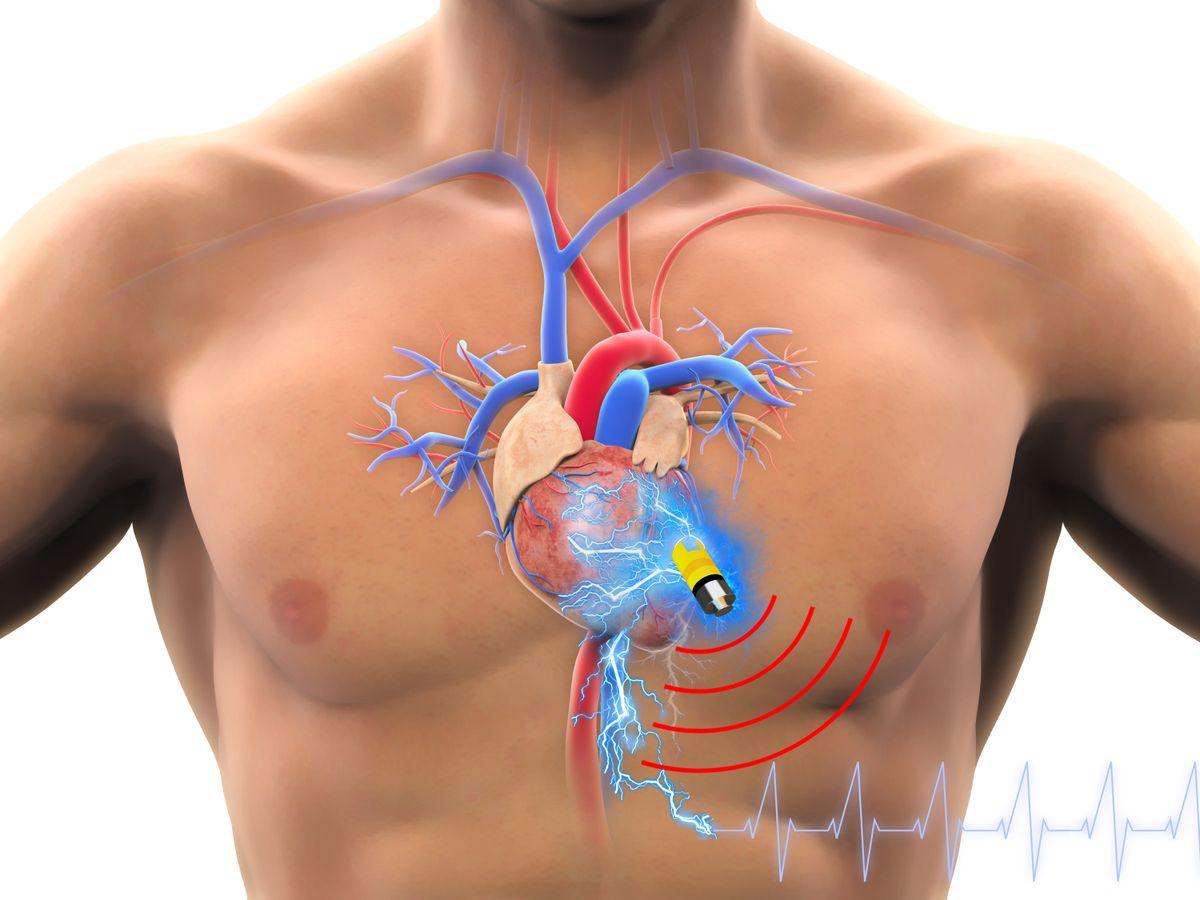 Biosupercapacitor in pacemaker