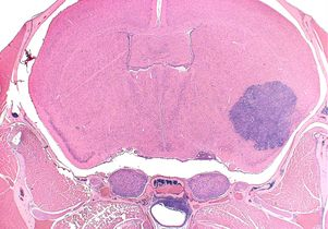 Mouse brain rhabdoid tumor