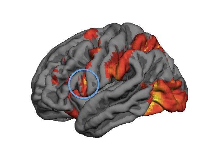 Inferior frontal cortex