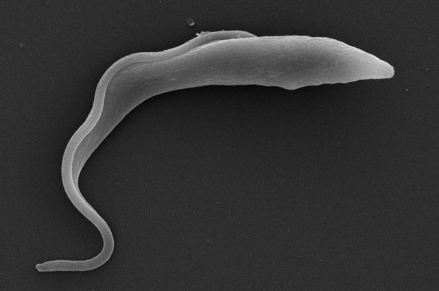 Microscopic Parasites >> Artificial Intelligence Based Device Detects Moving