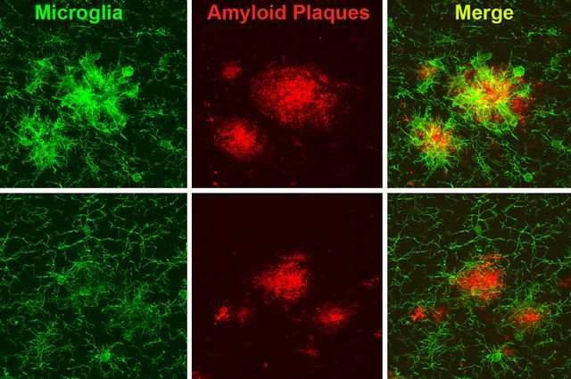 microglia illustration