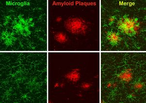 Shown here in green are microglia, the brain's immune cells, interacting with clumps of protein called amyloid plaques, shown in red, in a mouse model of Alzheimer's. In the top row, the microglia surrounding the amyloid plaques show heightened reactivity