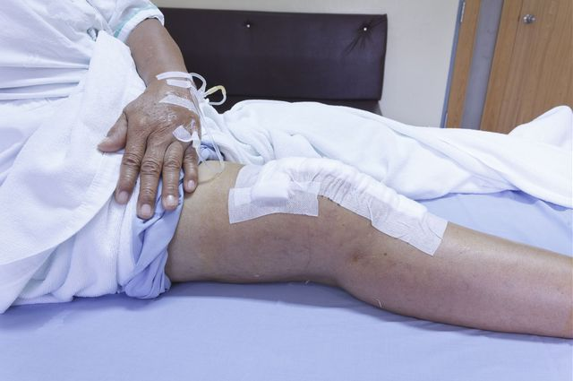Knee surgery patient
