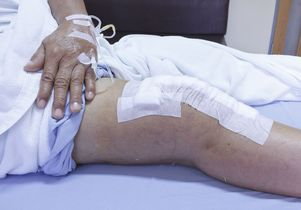 About 723,000 knee replacements were performed in the U.S. in 2014.