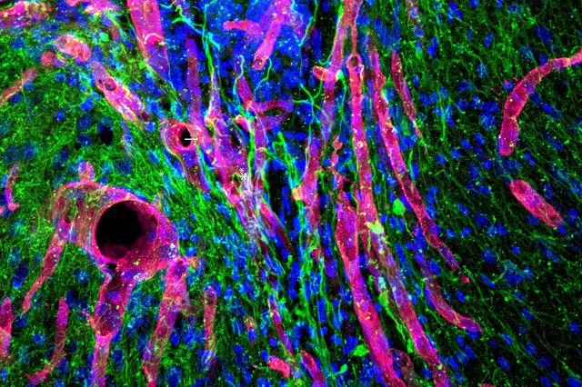 New tissue in brain