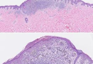 <em>The BMJ</em><br>Scan (at two resolutions) of a category 3 melanoma in situ.