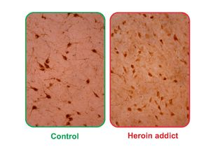 The image on the left shows hypocretin-producing cells in a typical brain, while the image on the right shows them in the brain of someone addicted to heroin.