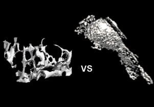 Bone matrix and fat cells