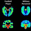 Brain scan comparisons