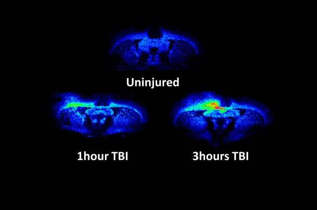 Traumatic brain injury in rats