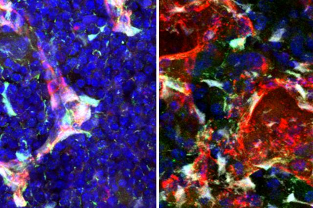 Pleiotrophin in cells