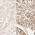 Adult stem cell signature marker in lung cancer cells